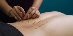 Efectividad de la Punción Seca en la Lumbalgia Crónica