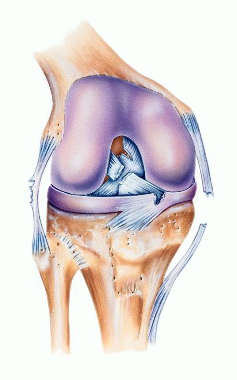 Rotura ligamento cruzado rodilla