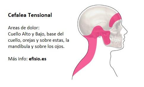 Áreas de dolor de la cefalea tensional