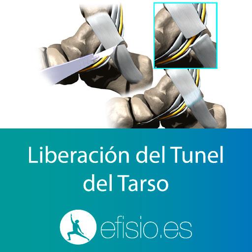 Cirugia Liberación Tunel del Tarso