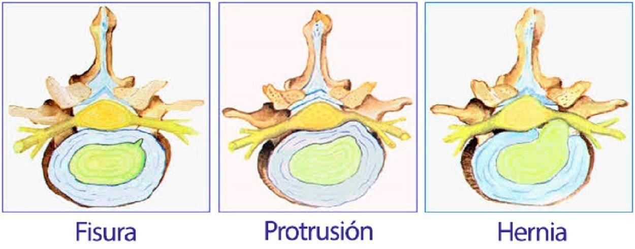 Diferencia Protusion Hernia Discal