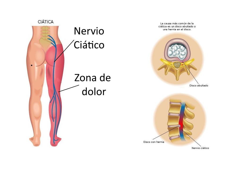 Dolor Nervio Ciatica Rodilla