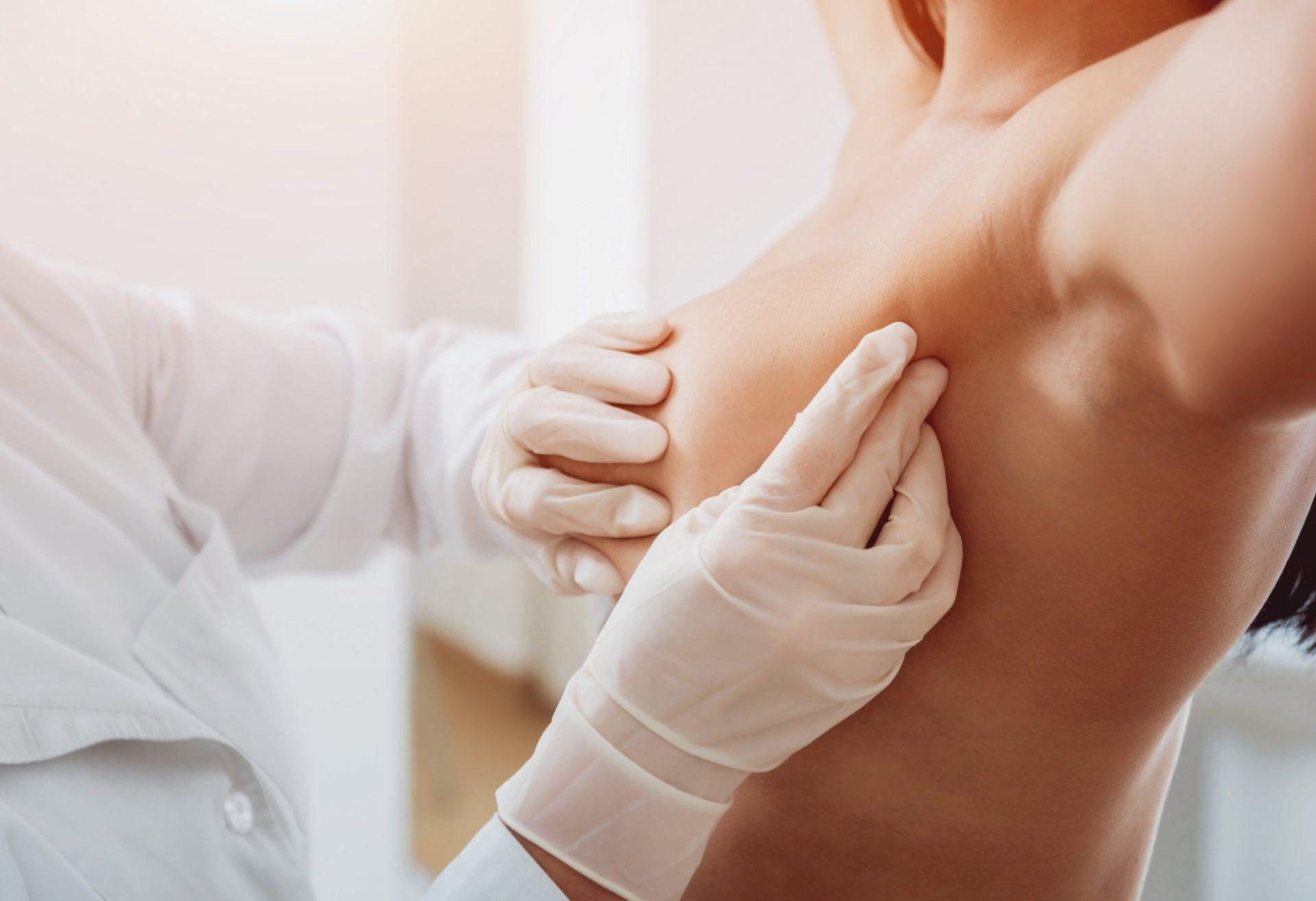 Drenaje linfatico post aumento de senos