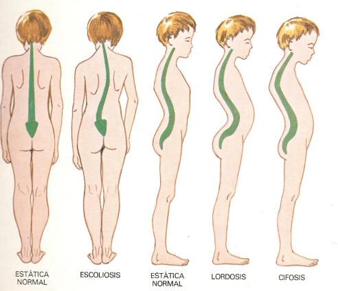 Tipos de escoliosis tratadas con Fisioterapia