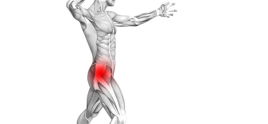 figura con trocanteritis o bursitis de cadera