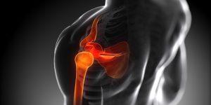 El post-operatorio de una luxación de hombro