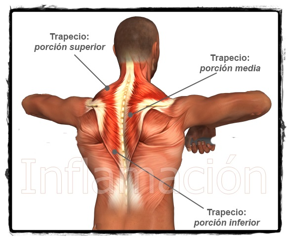 contractura muscular cuello y dolor de cabeza