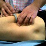 Fibrolisis diacutánea o técnica de los ganchos