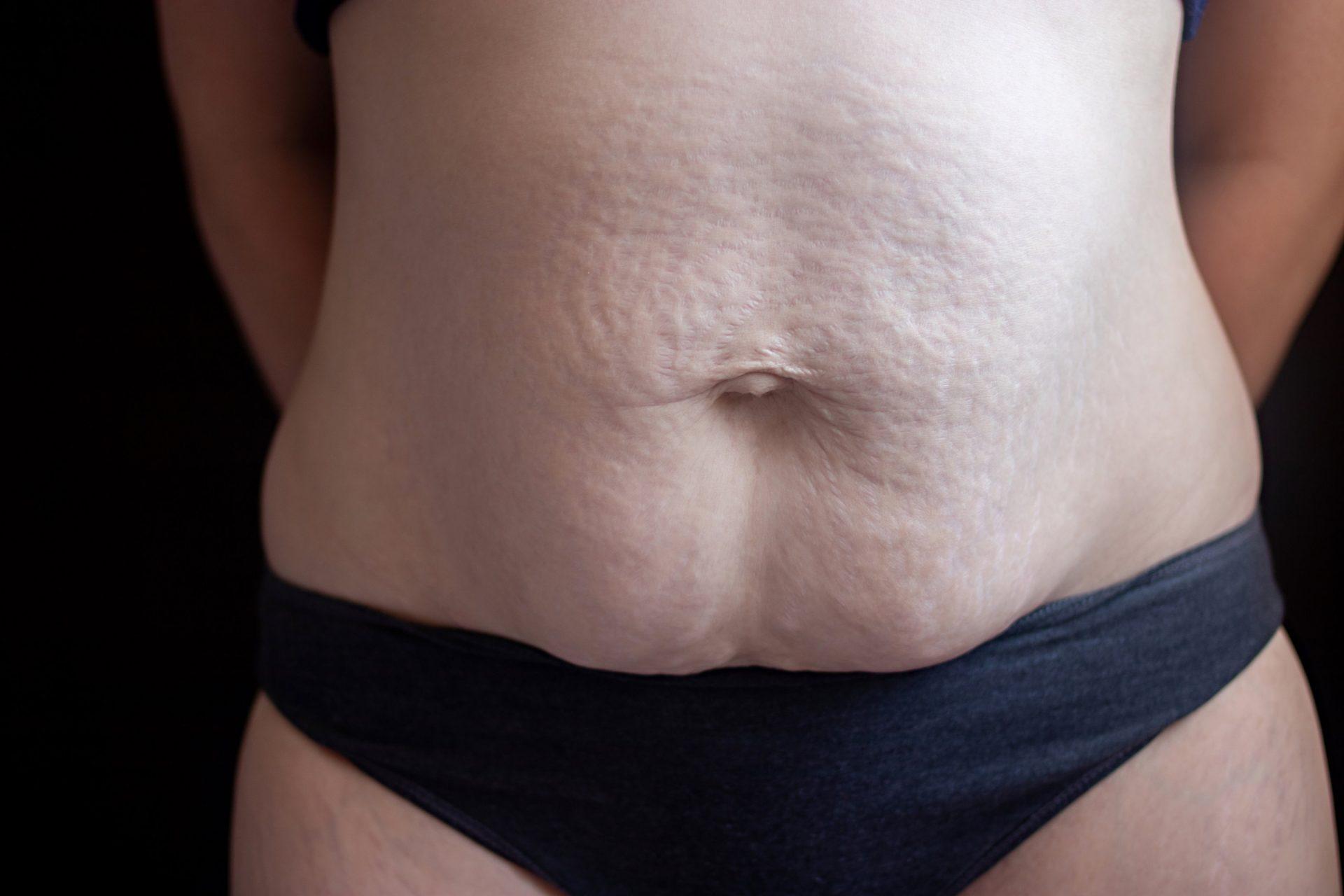 Vientre mujer postparto diastasis y estrias