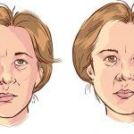 Parálisis Facial de Bell: Tratamiento de fisioterapia