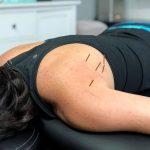 Tendinitis del músculo Infraespinoso: Tratamiento punto gatillo con Punción Seca