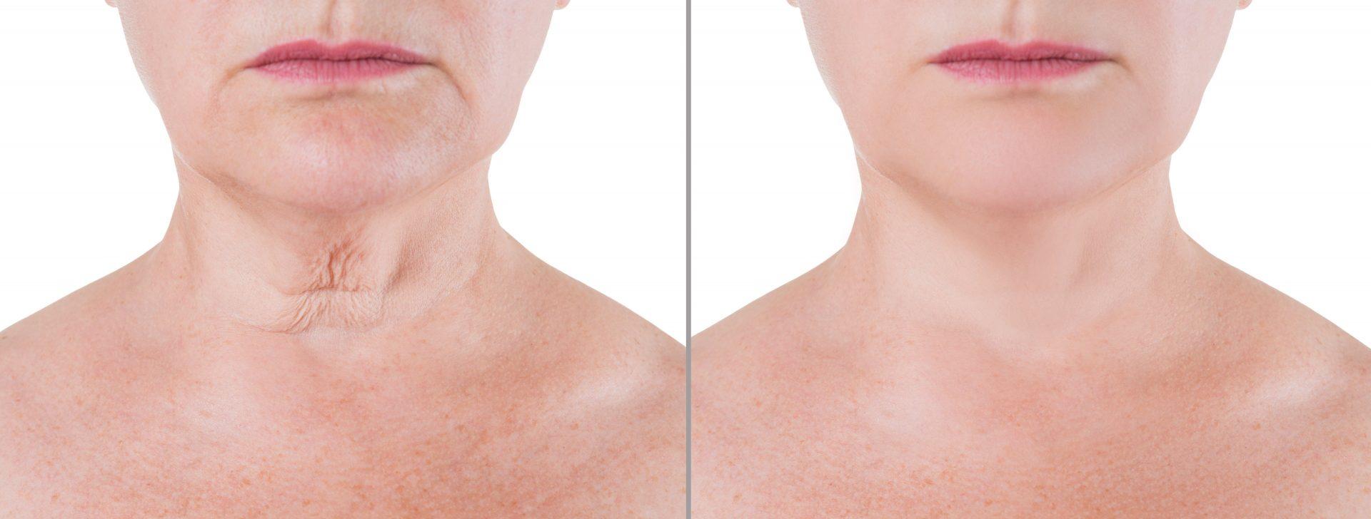 Radiofrecuencia facial cuello