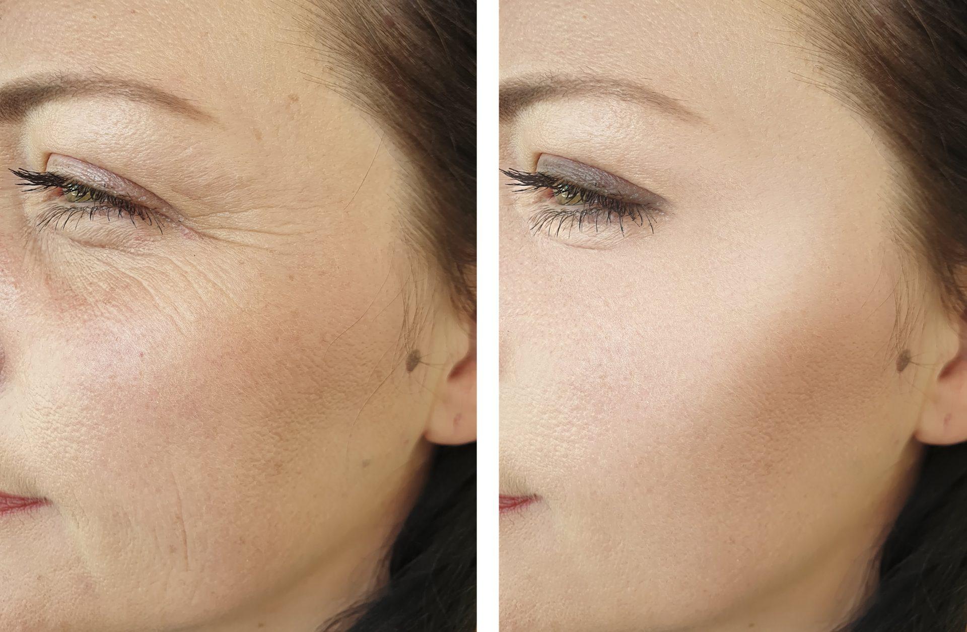 Radiofrecuencia facial resultados