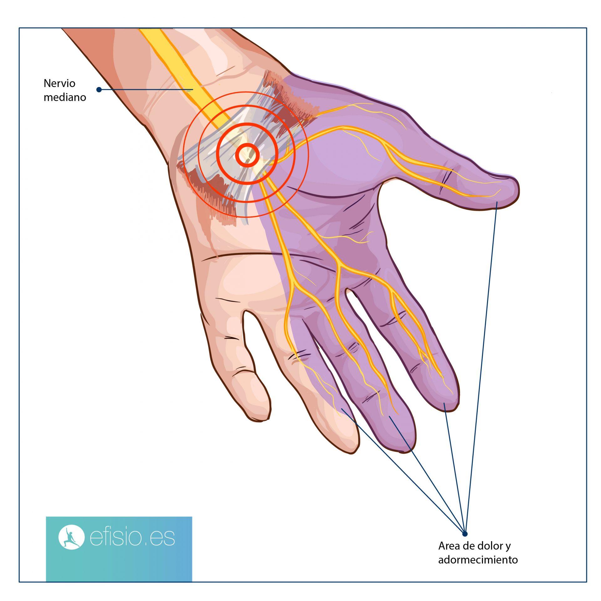 sindrome tunel carpiano nervio mediano