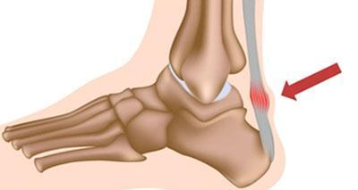 Tendinopatía/tendinitis de Aquiles