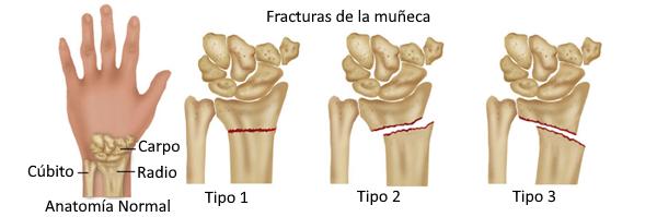 Tipos de fractura de muñeca