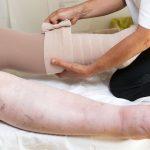 DESCUBRE los 3 tratamientos  del Linfedema con Fisioterapia más efectivos